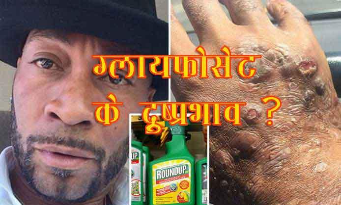 Side effects of Glyphosate in Hindi